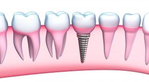 Dental implants