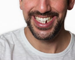 Hidden Consequences of Losing Teeth