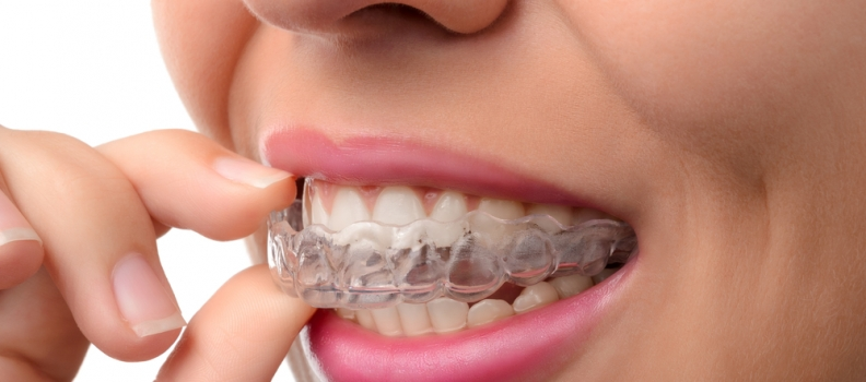 All You Want to Know About Invisalign®